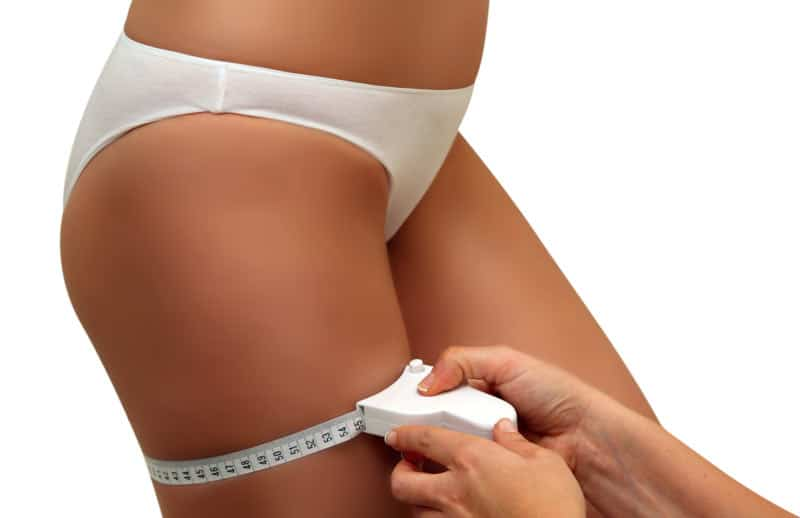cellulite fat reduction