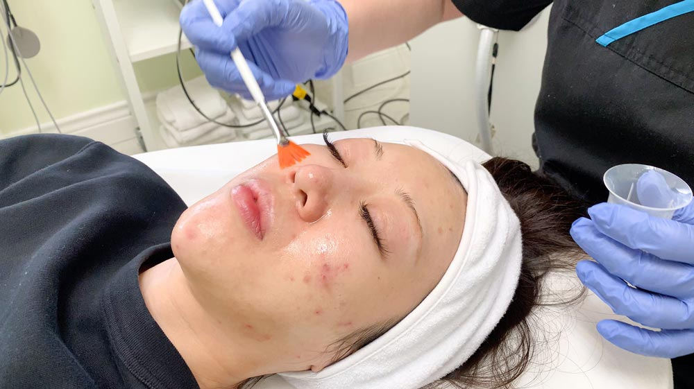 chemical-peels-acne-treatment