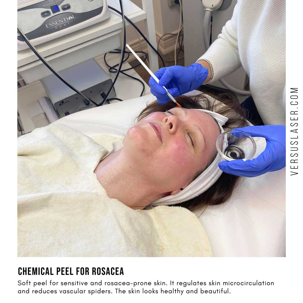 chemical peel for rosacea and redness