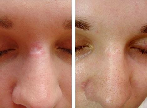 dermaroller scars2
