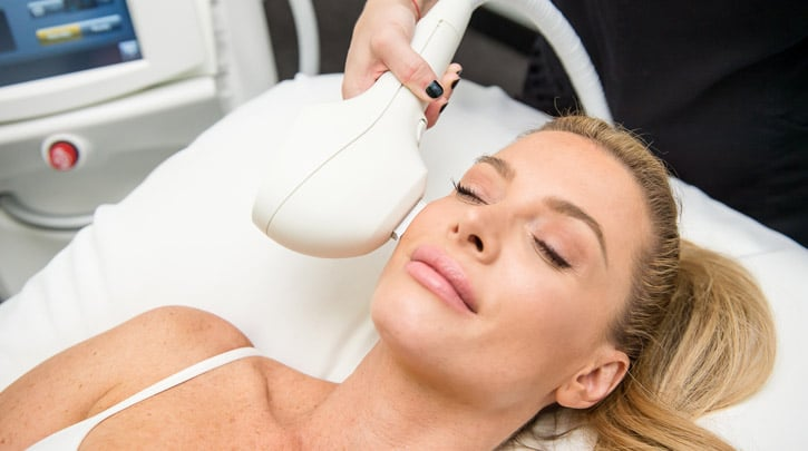ipl photofacial treatments