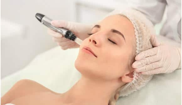 microneedling face