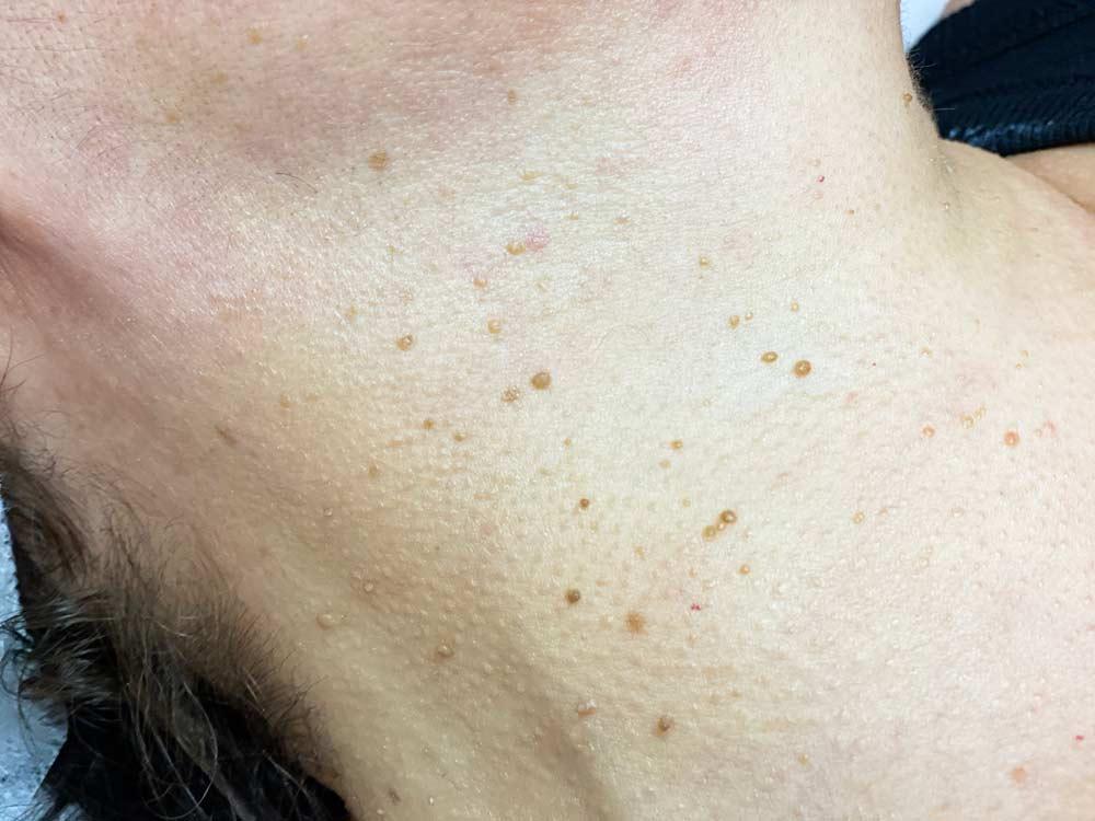 skin tag removal at vs-medspa