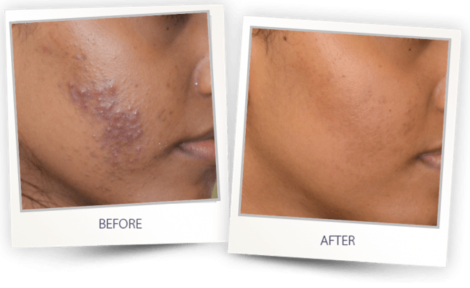 acne treatment before after 2