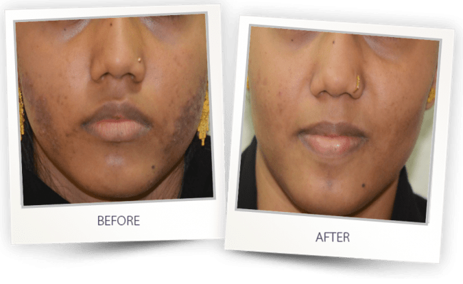 acne treatment before after face