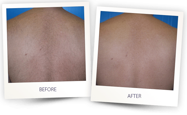 laser hair removal men back before after