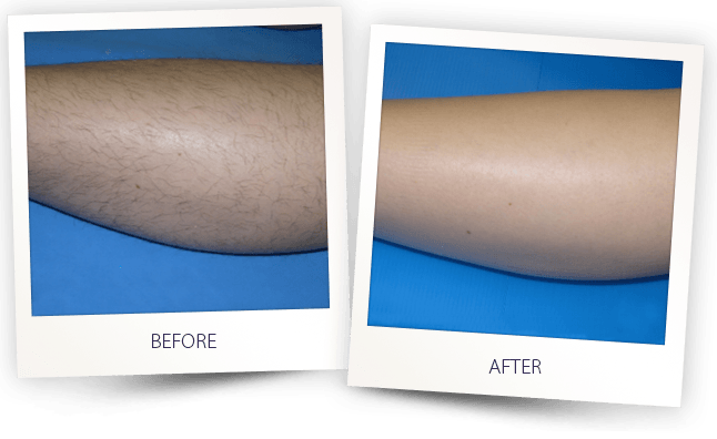 laser hair removal leg before after