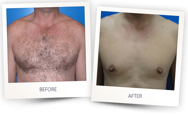 laser hair-removal men chest before after