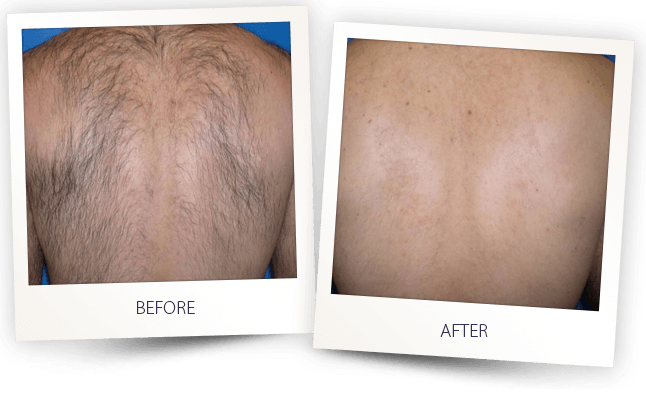 laser hair-removal men back before after