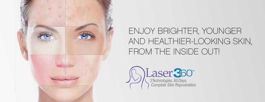 laser360ipl
