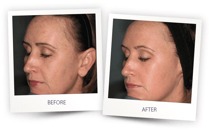 skin-resurfacing-1