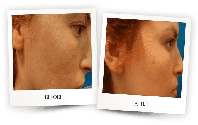 skin-resurfacing-2