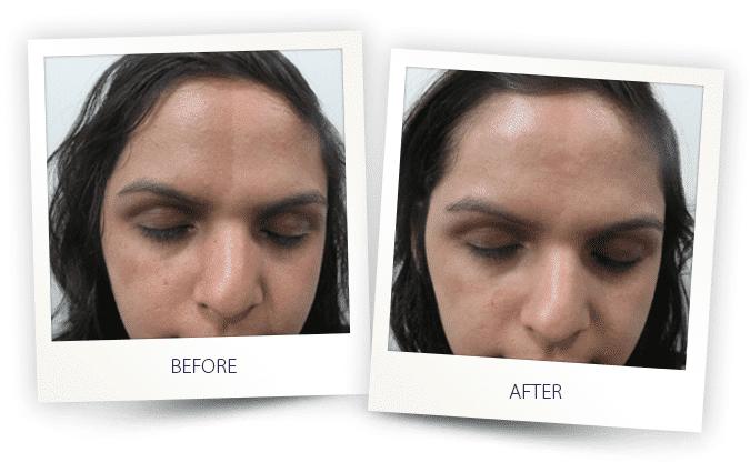 skin-resurfacing-3