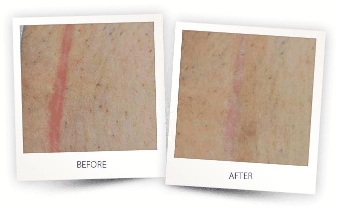 skin-resurfacing-4