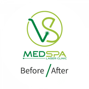vsmeddpa logo before after