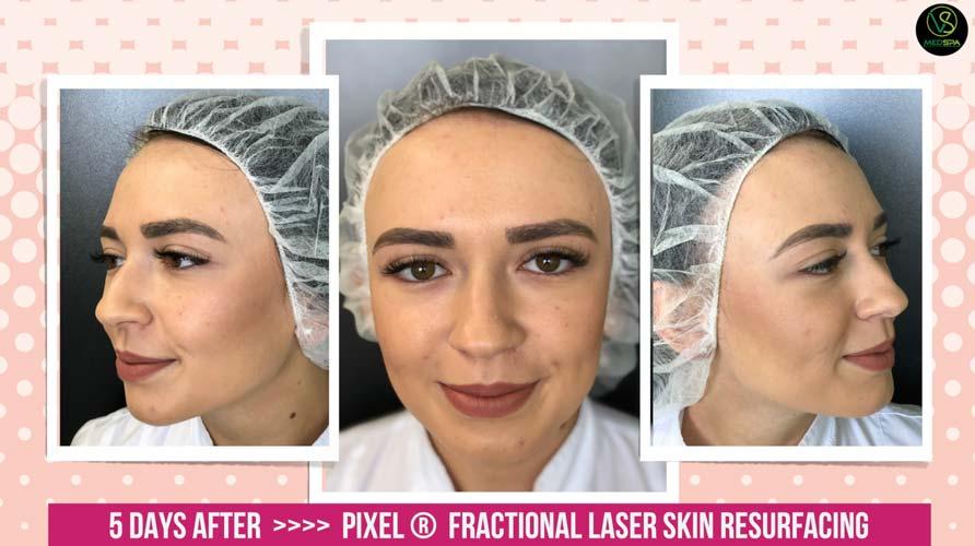 fractional laser skin resurfacing 5 days after