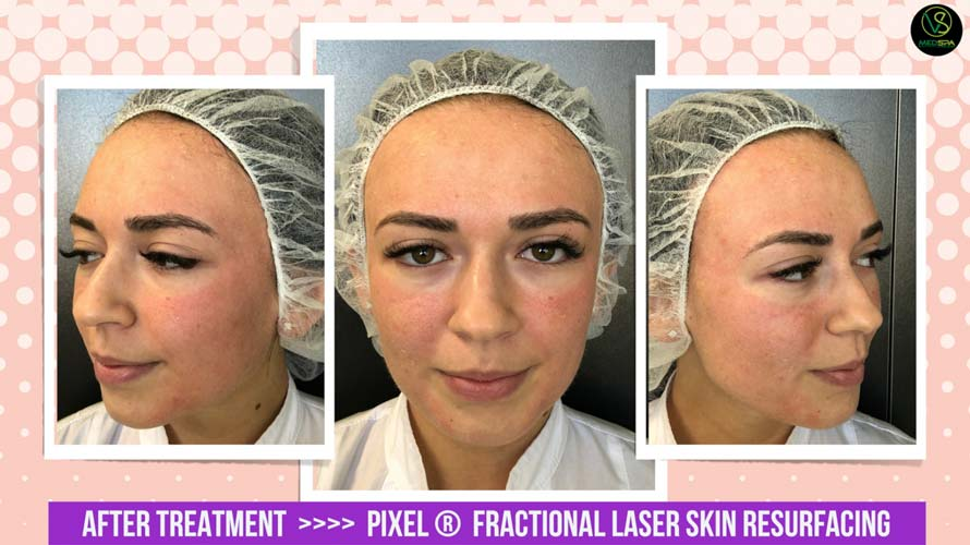 fractional laser skin resurfacing after