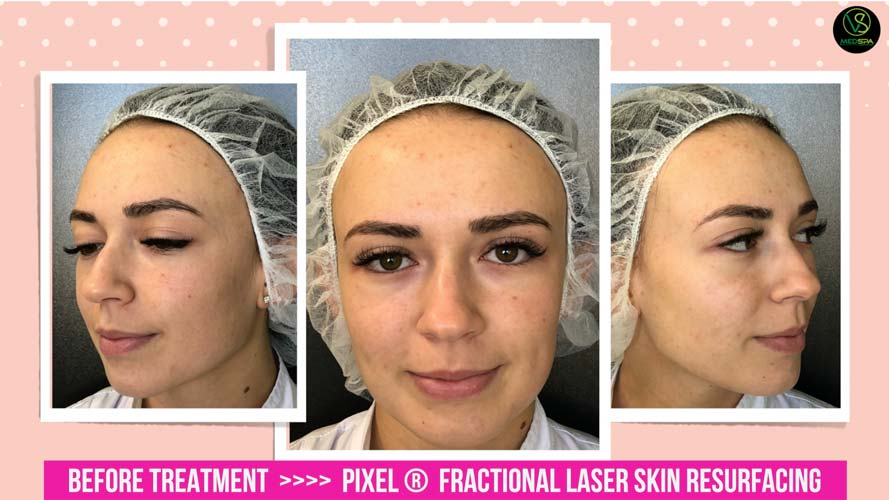 fractional laser skin resurfacing before