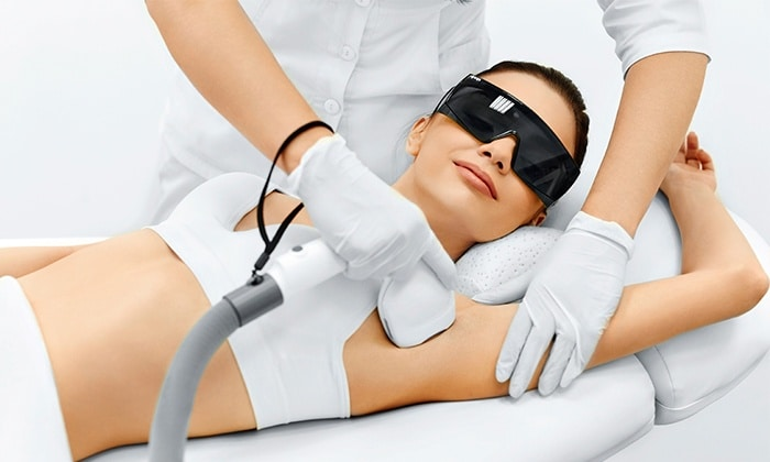 laser hair removal underarms female