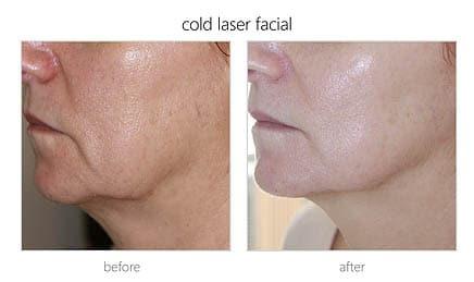 cold laser therapy vs medspa laser clinic
