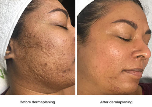 before-and-after-dermaplaning