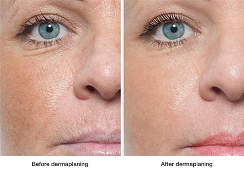 before-and-after-dermaplaning2