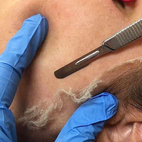 dermaplaning-procedure