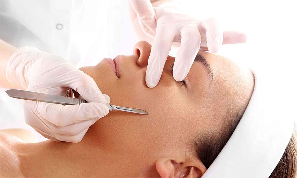 dermaplaning-treatment