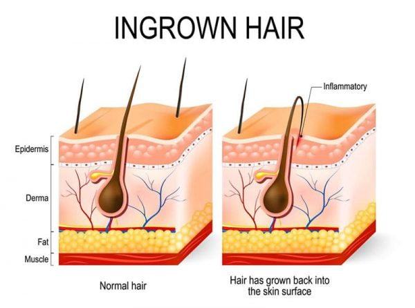 laser-hair-removal-ingrown-hair