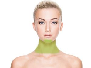 laser-hair-removal-chin-neck-women