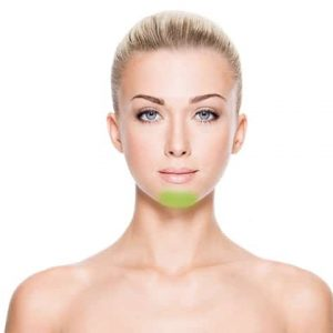 laser-hair-removal-chin-women