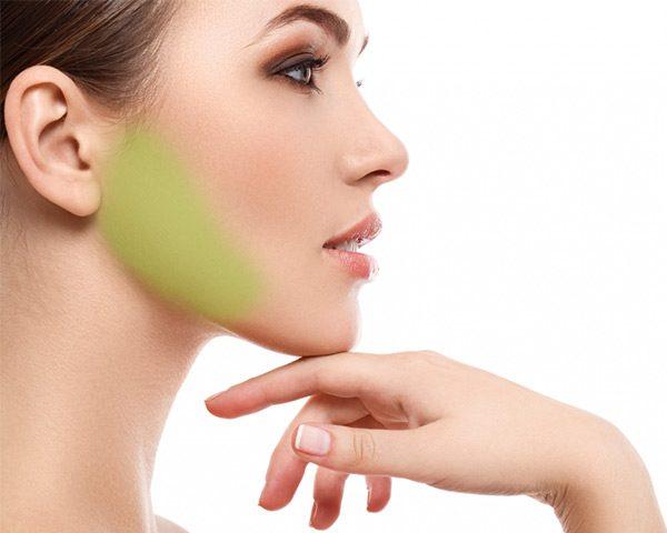 laser-hair-removal-sideburns-women