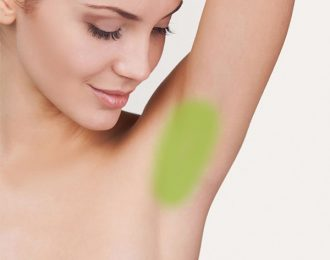 Laser Hair Removal for Women, Underarms