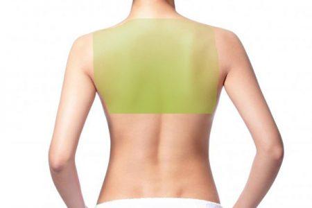 Laser Hair Removal for Women, Upper back