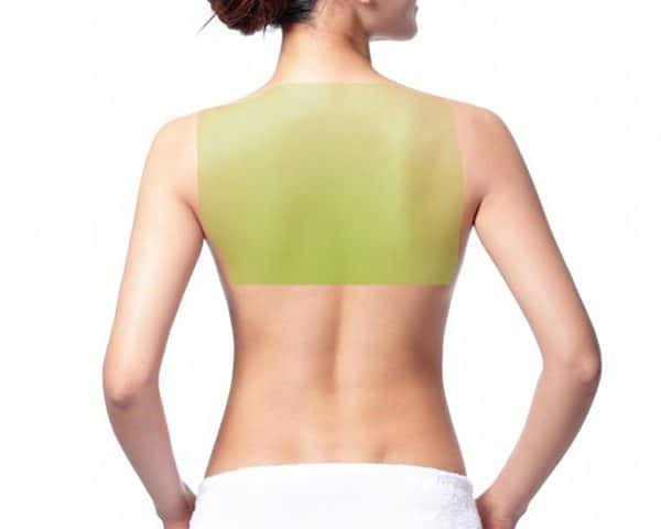 Laser Hair Removal for Women, Upper back