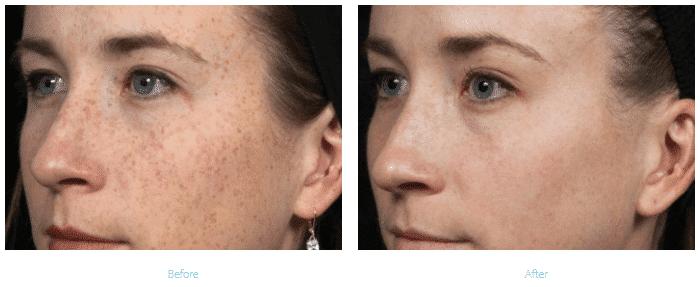 hyperpigmentation-treatment