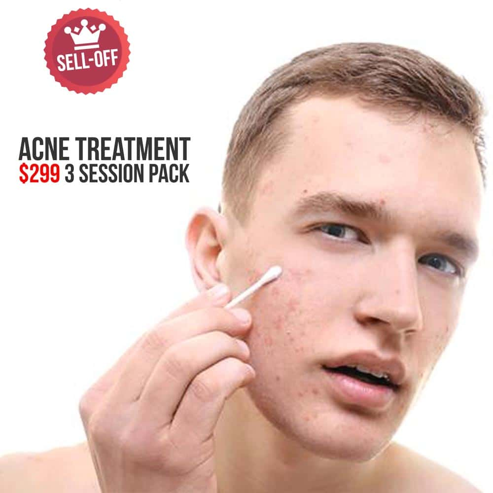 acne treatment package
