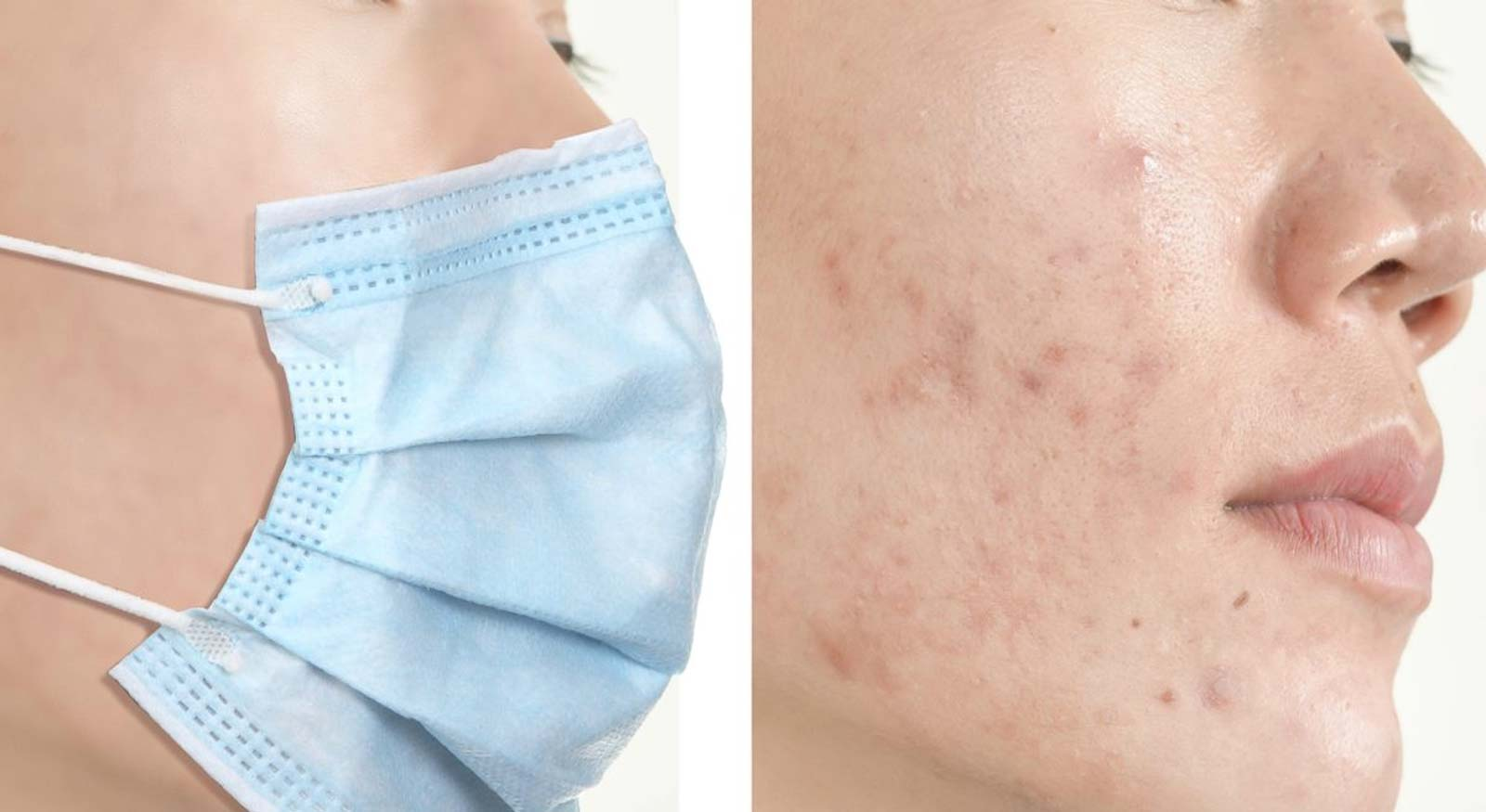 maskne mask acne breakouts