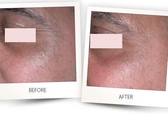 laser hair removal face before and after