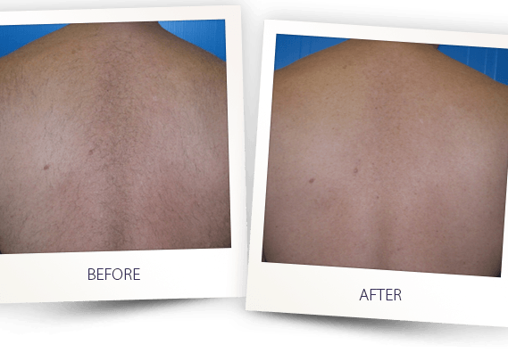laser hair removal full back before and after