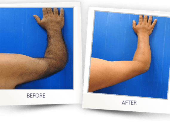 laser hair removal arms before and after