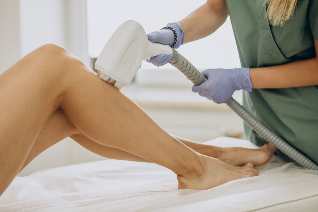 laser epilation hair removal therapy