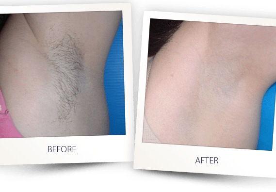 laser hair removal armpit before after