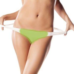 laser-hair-removal-brazilian-women-
