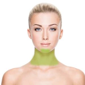 Chin and Neck Laser Hair Removal