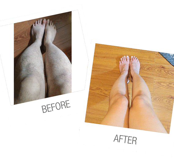 laser hair removal full legs before and after
