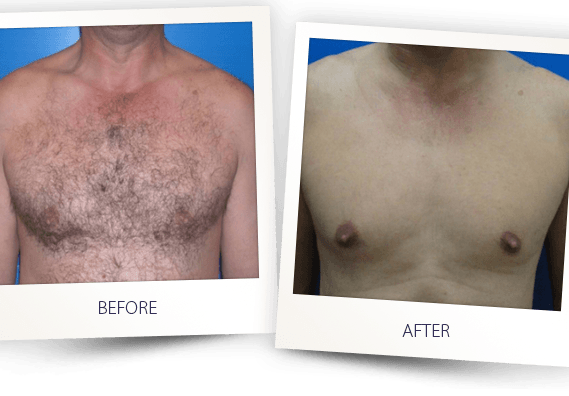 laser hair removal men chest before after