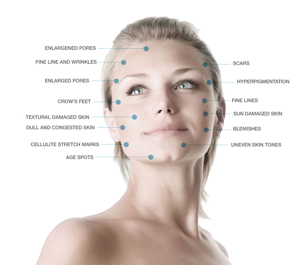Microdermabrasion benefits