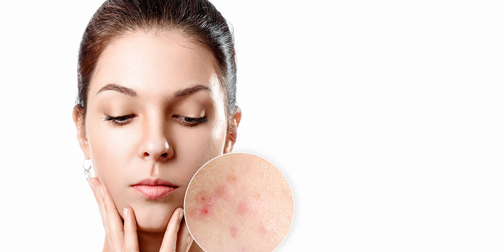 Acne Treatment in Toronto