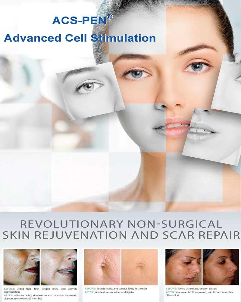 ACS–PEN Advanced Cell Stimulation
